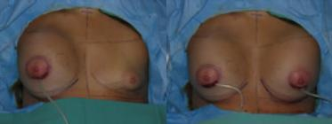 Tubular Breasts / Tuberous Breasts