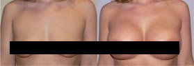 Breast Implants Photo Gallery